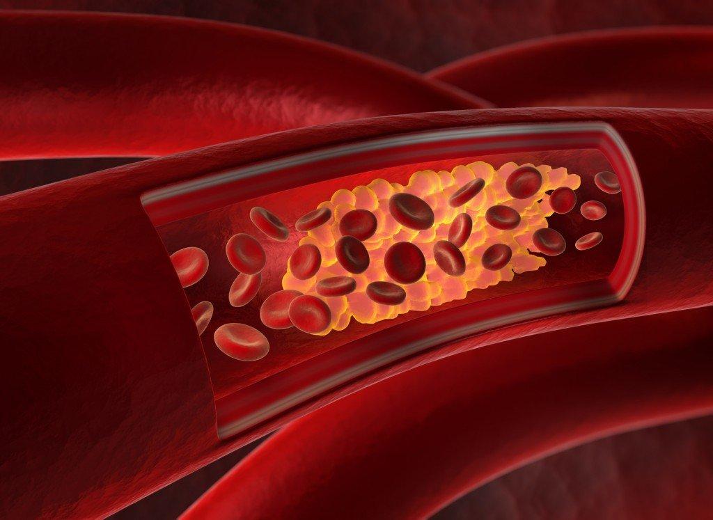 Arterienverkalkung durch Cholesterin